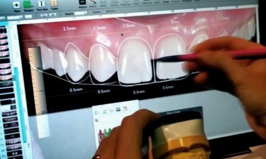 Программа dsd цифровой дизайн улыбки