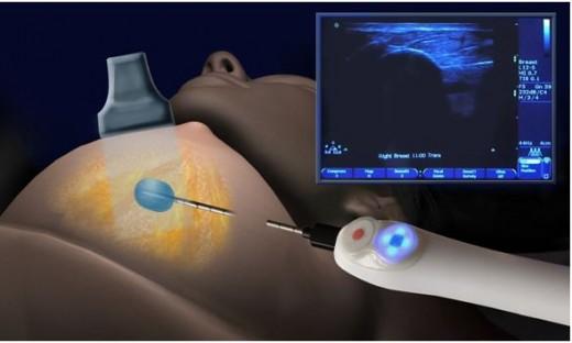 Вакуумная биопсия молочной железы аппарат вакуумный массаж с аппаратом лазмик